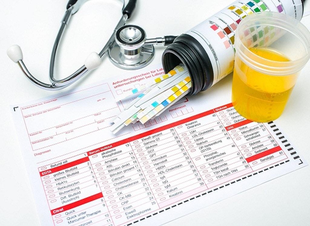 STD Medical Testing